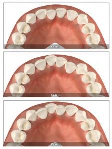 krzywe zęby - clear aligner