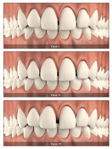 szpara między zębami -clear aligner