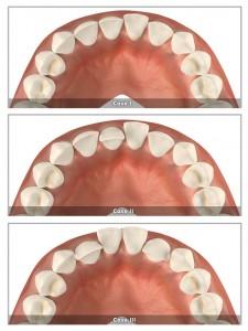 występujące zęby - clear aligner