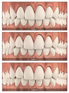 rozbieżne zęby - clear aligner