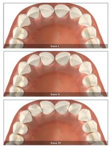 zęby zrotowane-clear aligner
